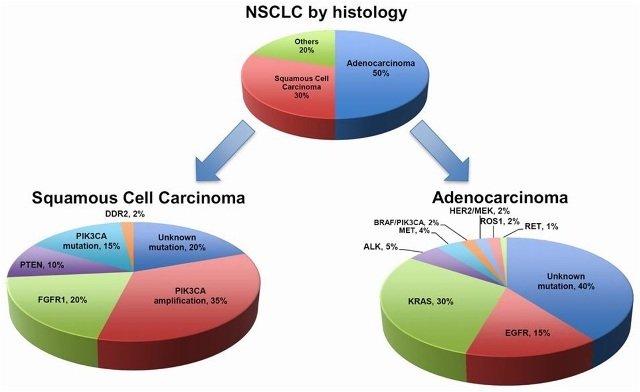 Classificazione del tumore al polmone non a piccole cellule