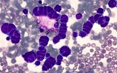 Test citologico tumore polmone