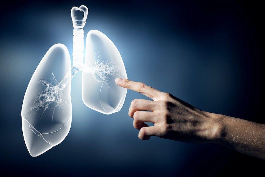 Tumore al polmone informazione online