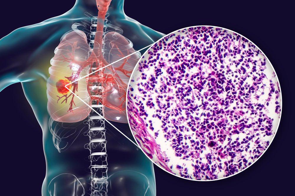 Microcitoma polmonare o carcinoma a piccole cellule SCLC