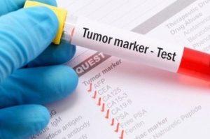 Biopsia liquida tumore al polmone