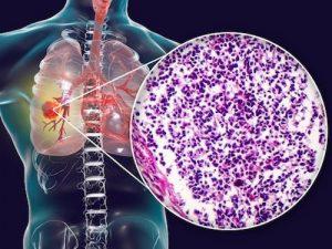 Carcinoma polmonare a piccole cellule SCLC