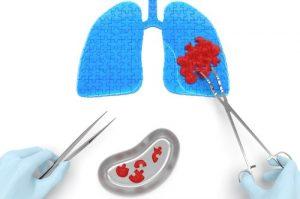 Chirurgia toracica tumore al polmone