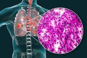 Diagnosi istologica tumore polmonare