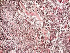 Terapia per tumore polmonare a piccole cellule