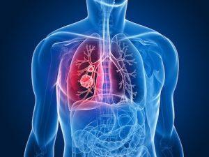 Tumore al polmone tutto cio che devi sapere